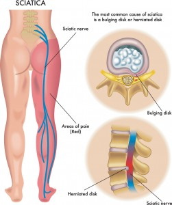 Sciatica Pain Medical Solution and Breakthrough